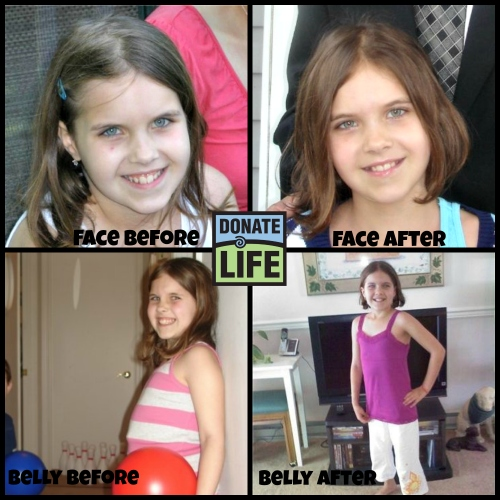 Before and after photos show the incredible impact that a liver transplant had for Caroline.
